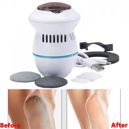 Electric Foot Vacuum Callus Remover USB Rechargeable Feet Files Grinder Feet Care For Hard Cracked Skin