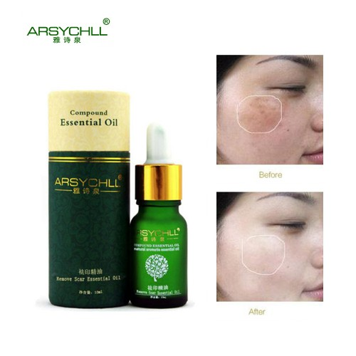 Acne Scar Removal Face Care Cream Acne Spots Skin Care Treatment Stretch Marks Whitening Remove Acne