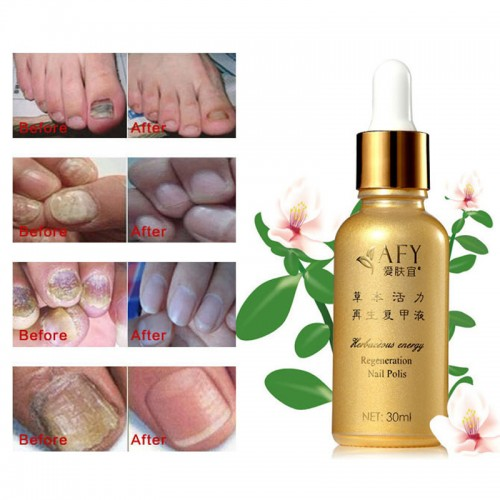 Afy Fungal Nail Treatment Tcm Essence Oil Hand And Foot Whitening Toe Nail Fungus Removal Feet