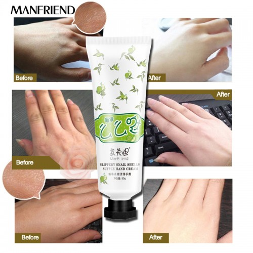 Snail Serum Repair Hand Cream Nourishing Hand Care Anti Chapping Anti Aging Whitening Firming Hand Cream