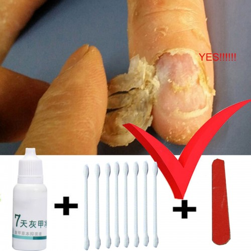 Toe Nail Fungus Treatment Anti Fungal Nail Infection Yellow Essence Removal Care Clear Fungus Nail Cure