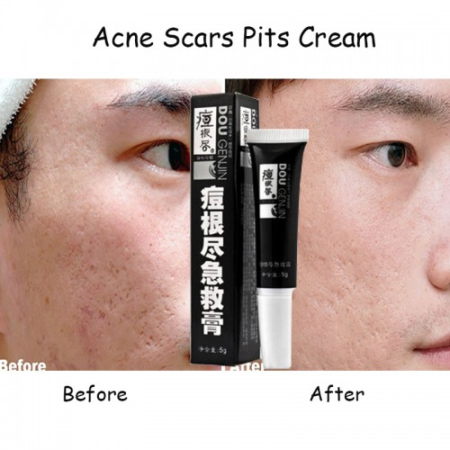 Acne Scars Pit Cream lightening anti acne cream to remove dark spots Vitamin e capillary cream
